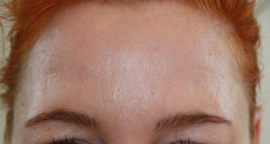 Azzalure-botox-behandling